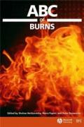 ABC_of_Burns.pdf